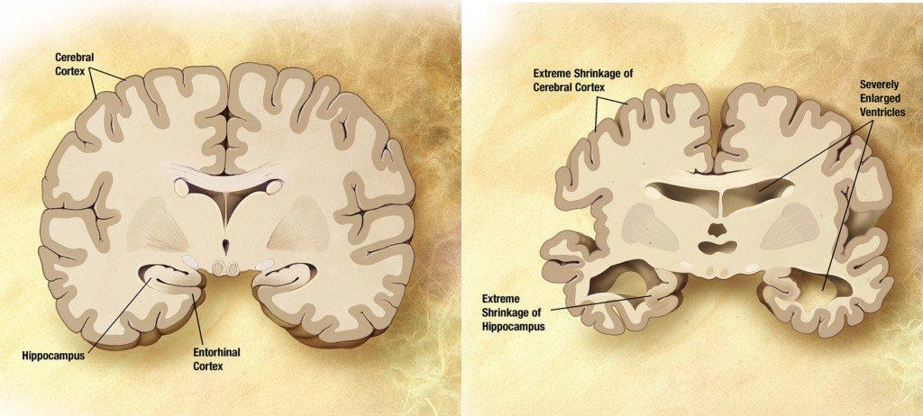 Alzheimer's disease brain changes